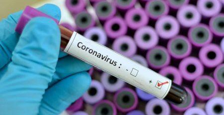 ویروس کرونا با آنتی بیوتیک درمان می شود؟ | واکسن ضد کرونا | کیت تشخیص کرونا در کشور ساخته شد | کرونا و بازار داغ زنجبیل و کود الاغ | سوء استفاده سوداگران از دروغ های کرونایی | احتمال مرگ در ویروس کرونا چقدر است ؟ | طرح شناسایی مبتلایان کرونا در منازل کدام استانها اجرا خواهد شد؟