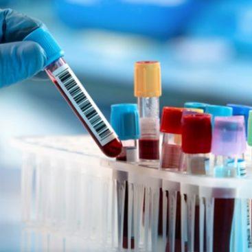 فروش اسید کلریدریک صادراتی | خرید اسید کلریدریک آزمایشگاهی و صنعتی مرک با قیمت ویژه